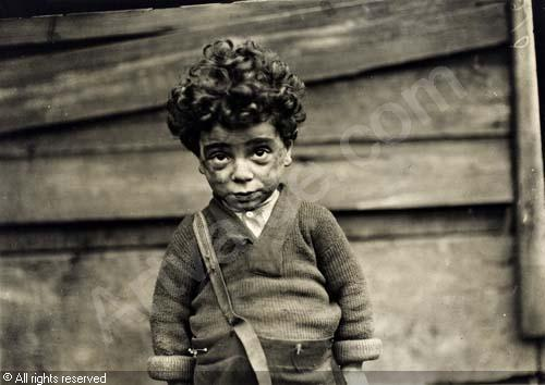 tenement child 1910